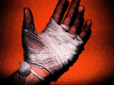Mano herida2